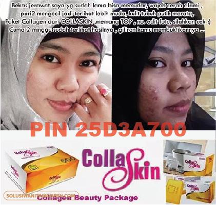 collaskin5